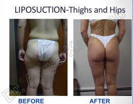 liposuction thigh and hip