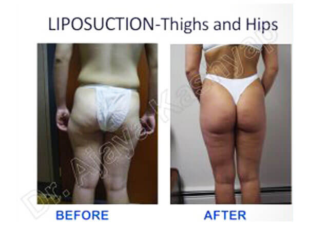 Thighs and Hips Liposuction surgery in India