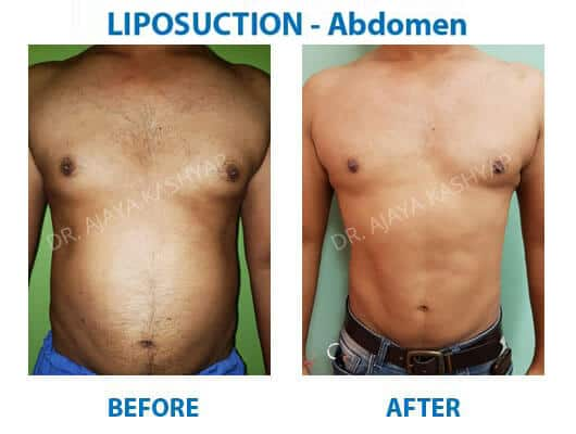 abdomen liposuction surgery
